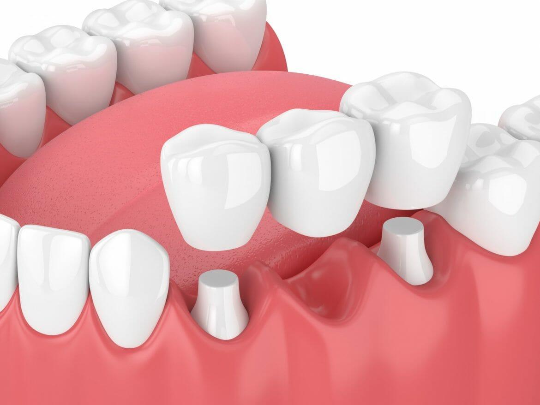 Dental bridge diagram
