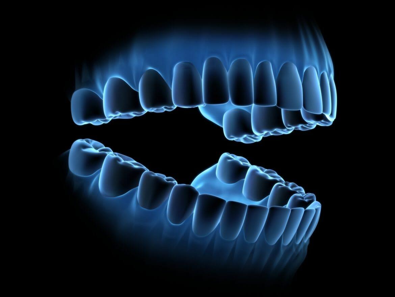 Digital scan of teeth